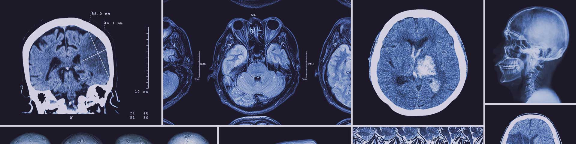 xrays of catastrophic brain injuries